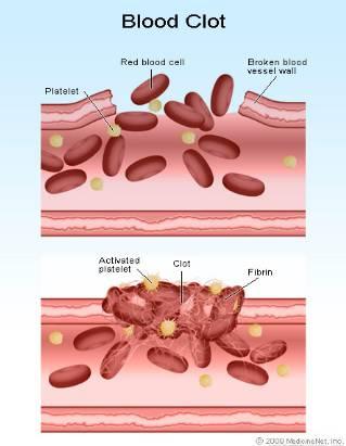 penjelasan mekanisme pembekuan darah